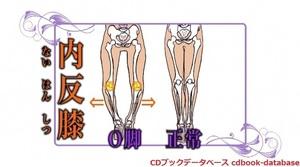 O脚革命3.jpg